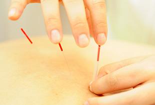 鍼灸(はりきゅう)症状別プログラムイメージ